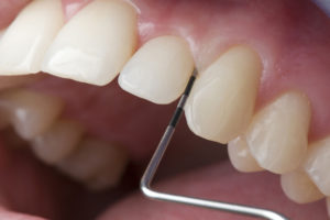 parodontologia_mininvasiva_esmile