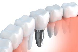 Implantologia-frosinone
